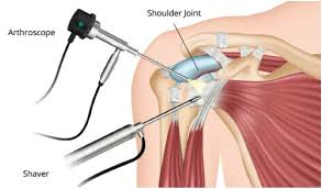 Arthroscopy Orthopaedic Surgery