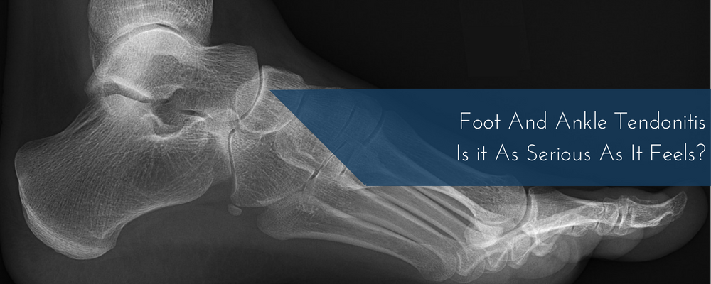 Foot And Ankle Tendonitis – Is It As Serious As It Feels?