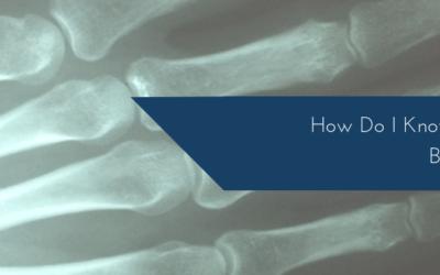 How Do I Know If I Have A Broken Finger?